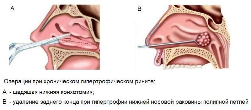 задняя нижняя конхотомия