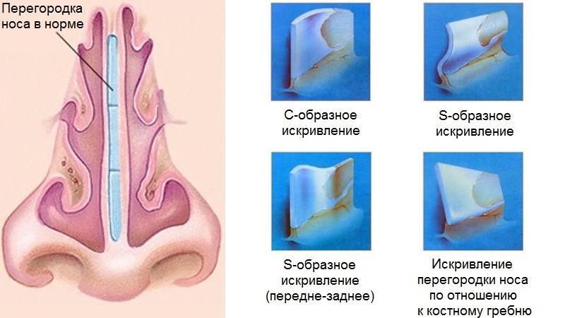деформация перегородки носа