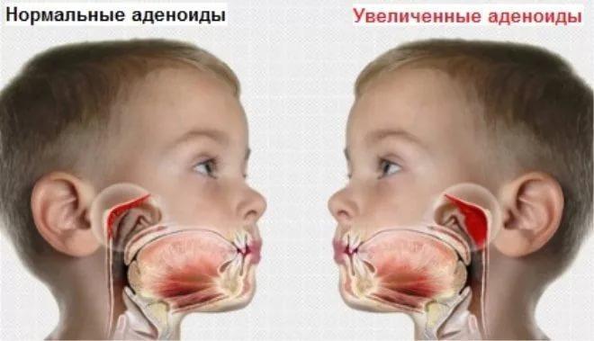 лечение насморка при аденоидах у детей