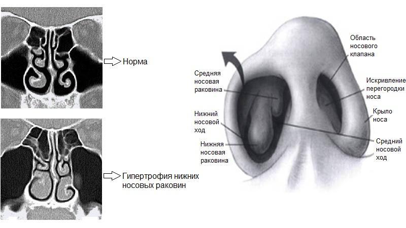 признаки и лечение гипертрофии носовых раковин