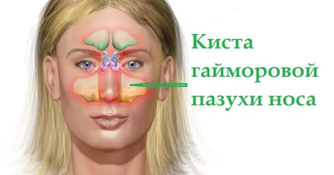 как лечить кистозный гайморит