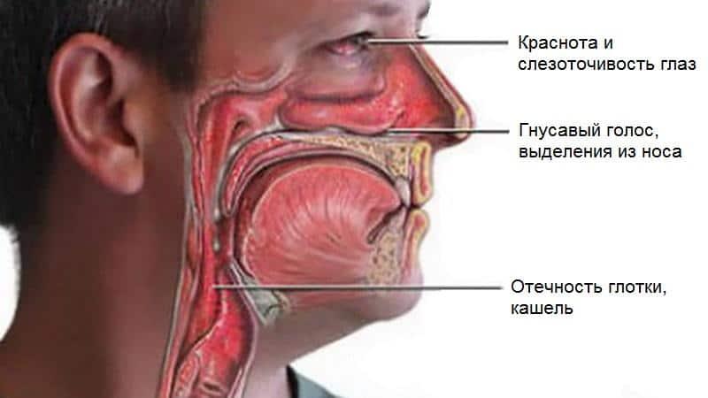 симптомы заднего ринита