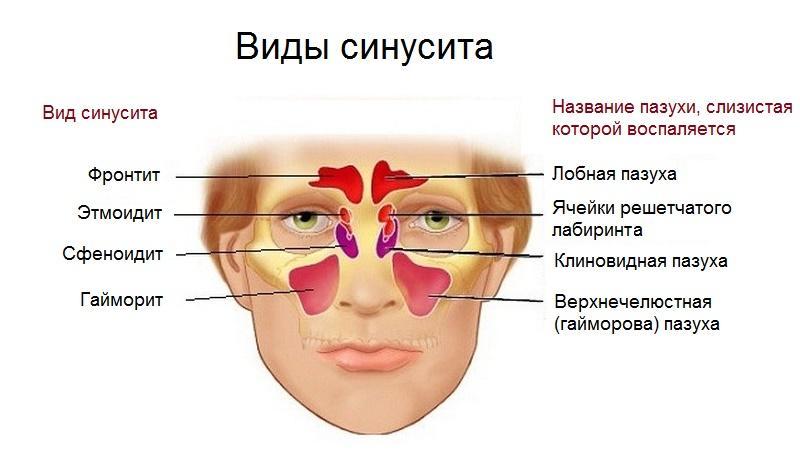 Синусит симптомы и лечение в домашних условиях