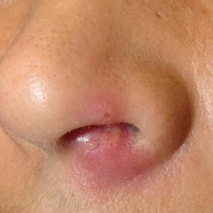 -чем и как лечить фурункул в носу