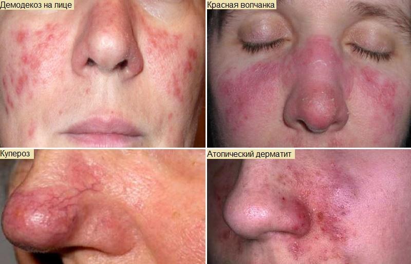 причины и лечение красного носа
