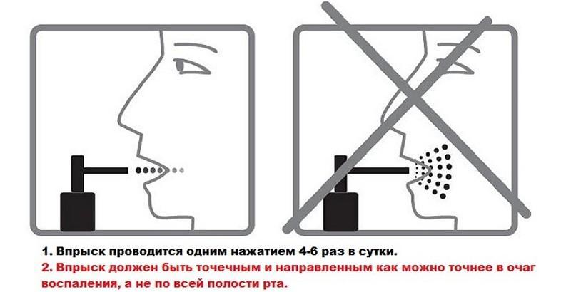 инструкция по применению люголя при беременности