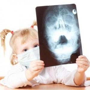 Как вылечить двухсторонний гайморит у ребенка