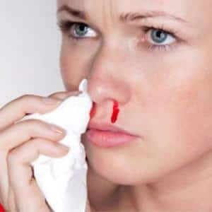 cause nose bleeding adults