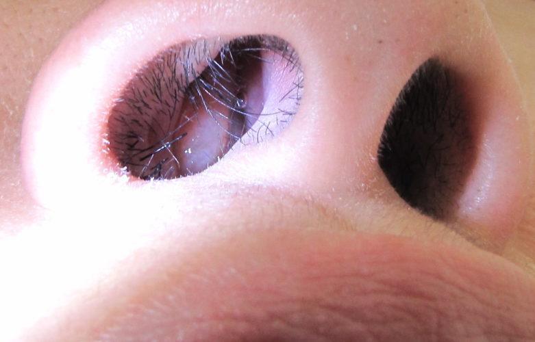 Нарост в носу – причина появления полипов