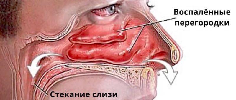чем и как лечить воспаление слизистой носа