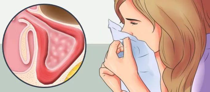 воспаление слизистой оболочки носа без насморка