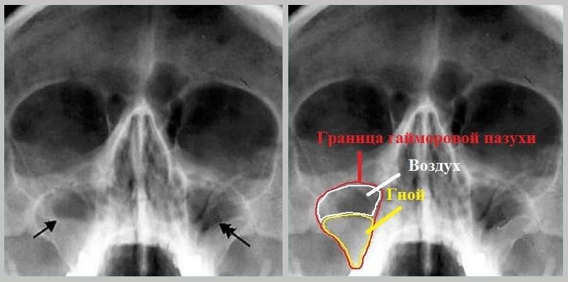 что показывает рентген носовых пазух
