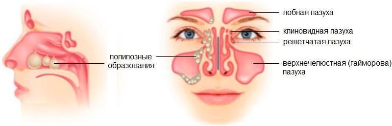 симптомы и лечение полипозного синусита