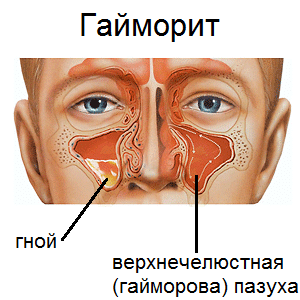 Какой врач лечит гайморит