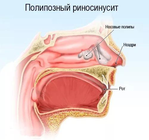как вылечить хронический полипозный риносинусит