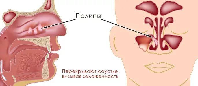 признаки хронического полипозного риносинусита