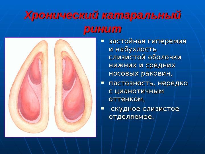 лечение хронического катарального ринита в домашних условиях