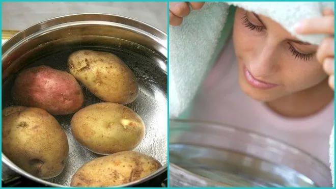 можно ли дышать над картошкой при беременности