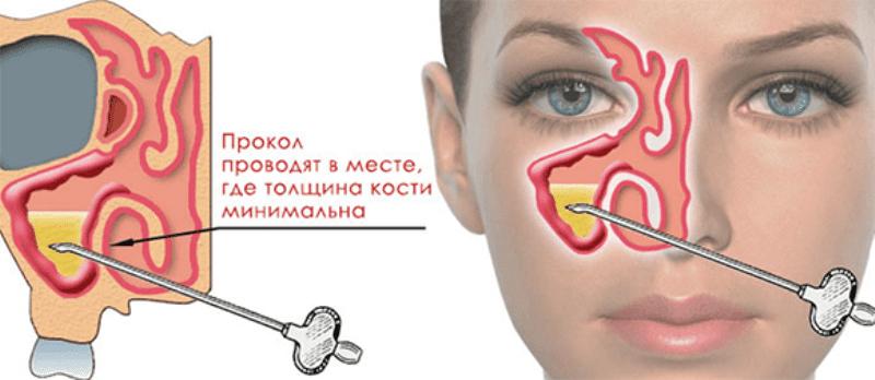 операция при гайморите на пазухи носа