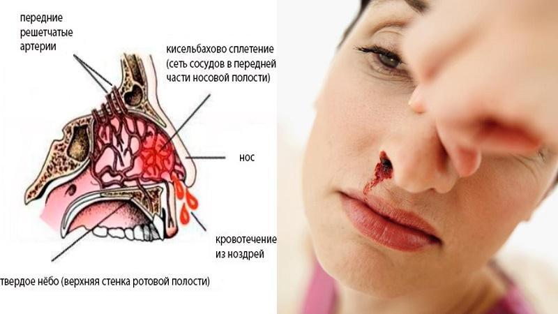 причины носовых кровотечений у подростков
