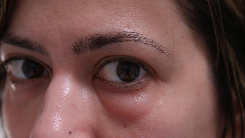 последствия продувки ушей через нос