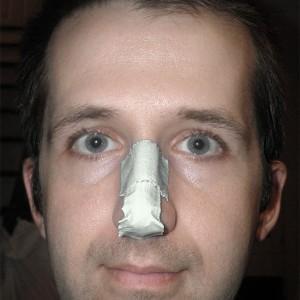 вправить нос самостоятельно