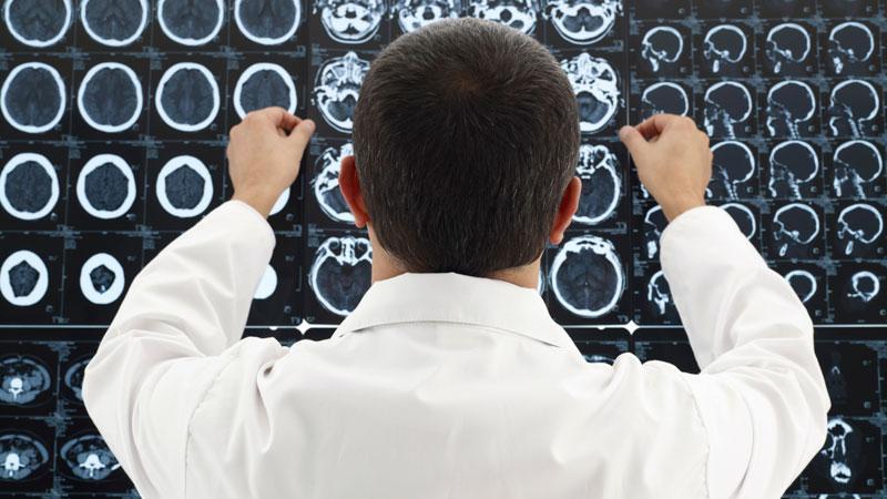 синусопатия головного мозга