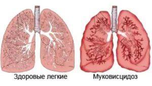 муковисцидоз у грудничка