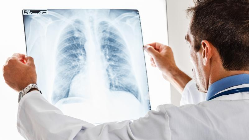 кашель при пневмонии у ребенка