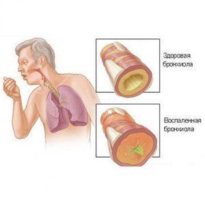 Как лечить гнойную мокроту при кашле