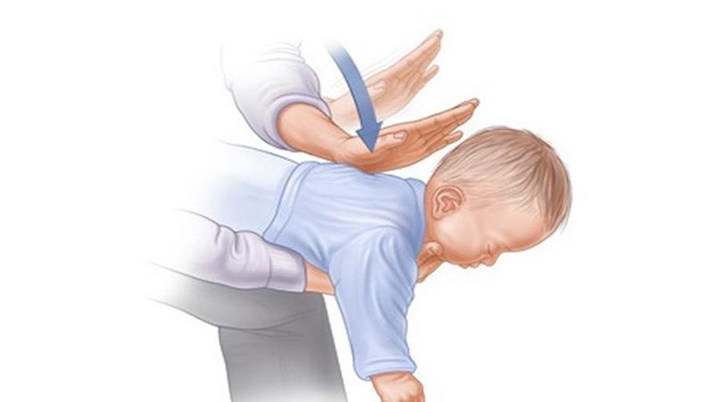 Как лечить обструктивный кашель у детей