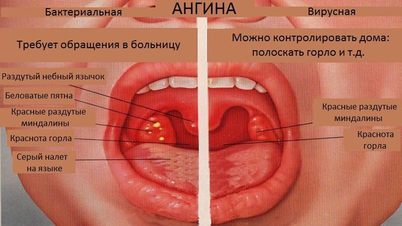 Что можно и нельзя кушать при ангине