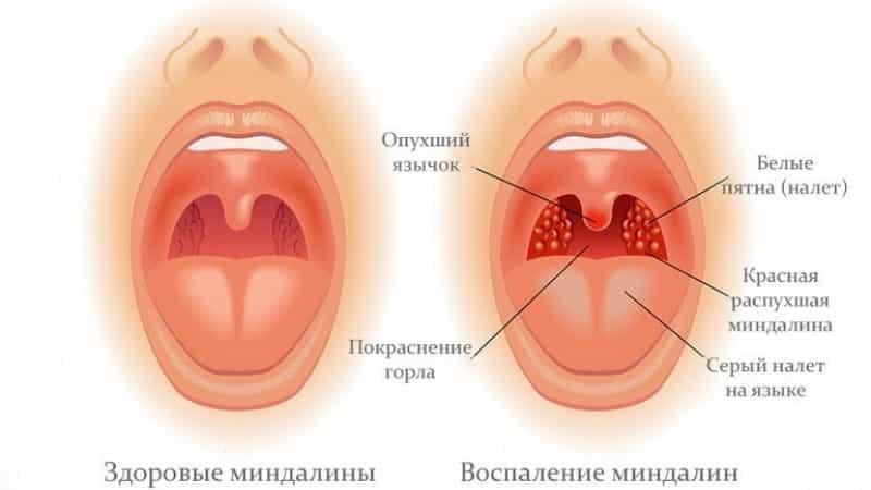 Как лечить фолликулярную ангину