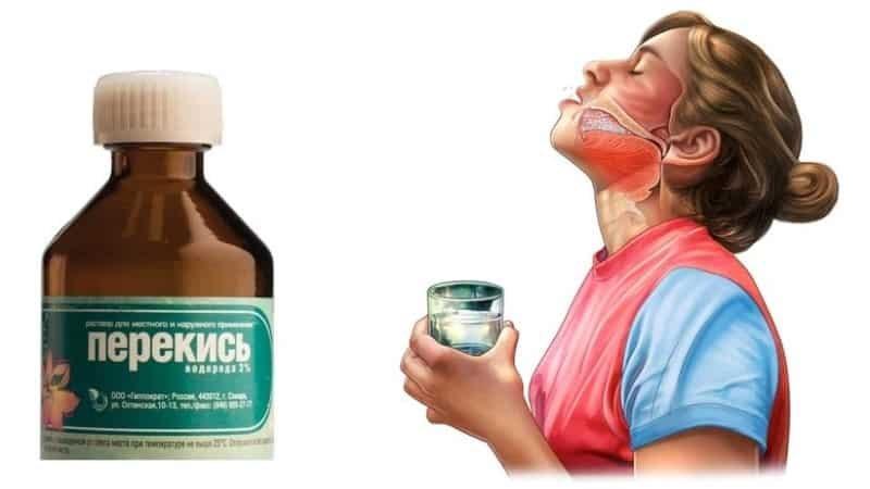 Как лечить кашель перекисью водорода?