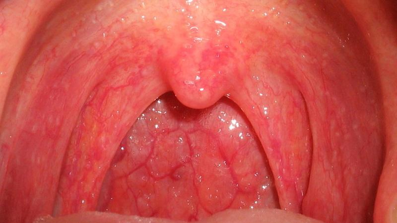 Как лечить стрептококк в горле