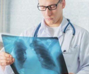Что делать если затяжной кашель не проходит 2 недели и месяц: как лечить взрослого 2019
