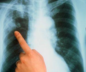 plet på lungen
