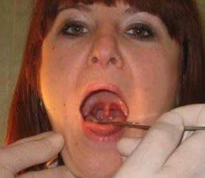 Как лечить воспаление язычка в горле
