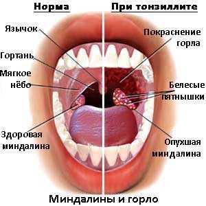 Что такое миндалины в горле