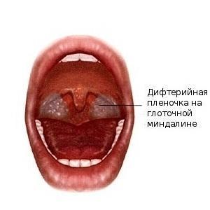 Чем отличается ангина от дифтерии