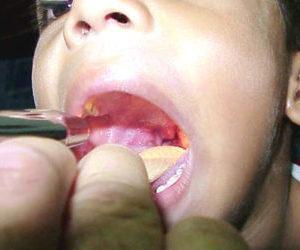 Что такое небные миндалины