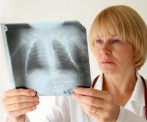 Как лечить воспаление лёгких