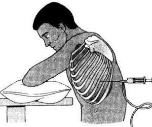 Как выполняется торакоцентез