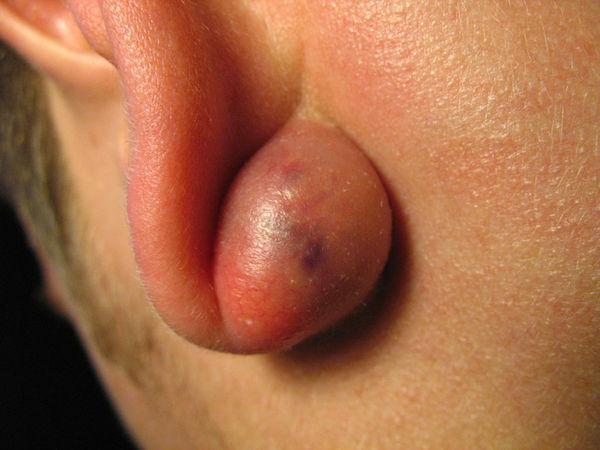 Что такое отомастоидит и как его лечат