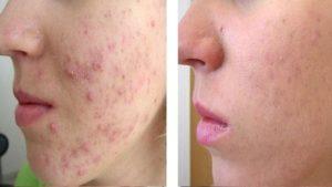 Плазмолифтинг для лица и тела - все плюсы и минусы